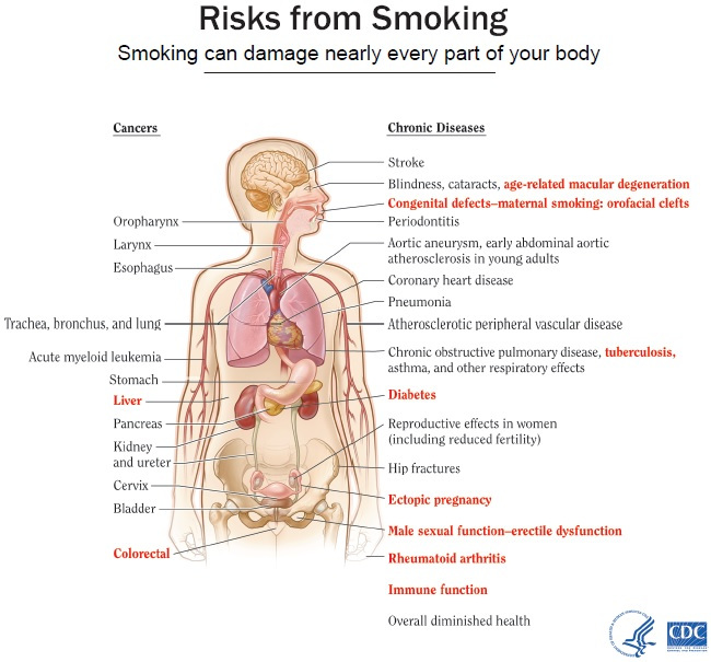 Smoking Risk image